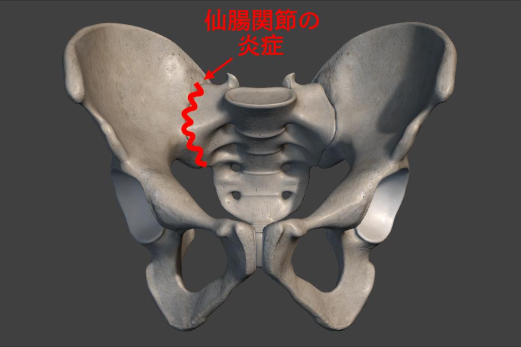 仙腸関節の炎症