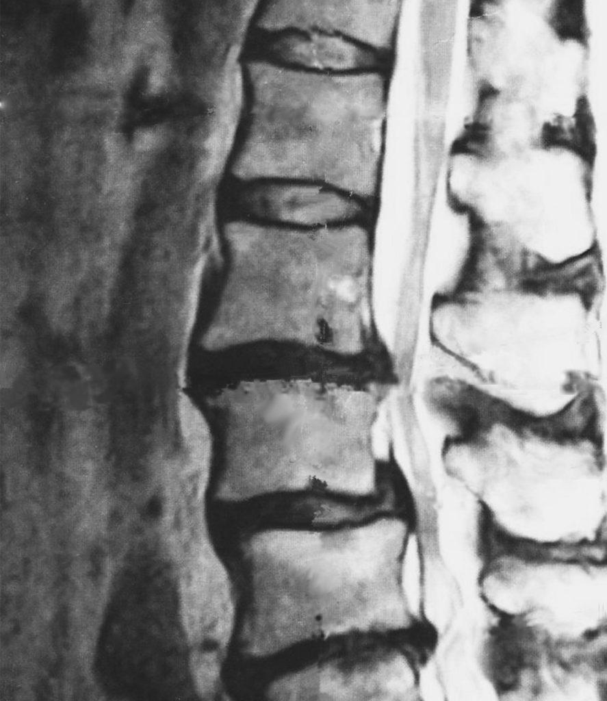 椎間板ヘルニアのMRI画像
