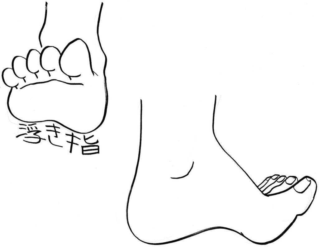 浮き指の足