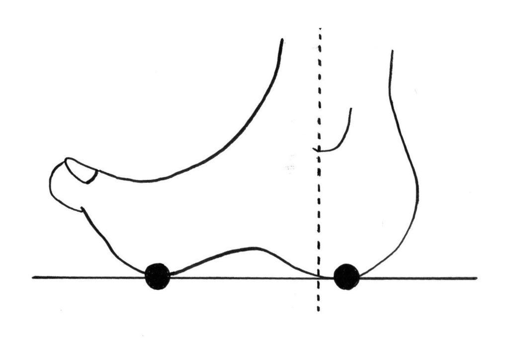 浮き指の足の接地