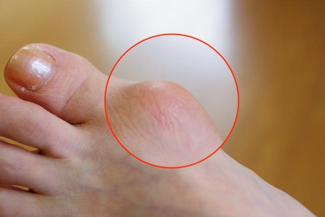 外反母趾による痛み