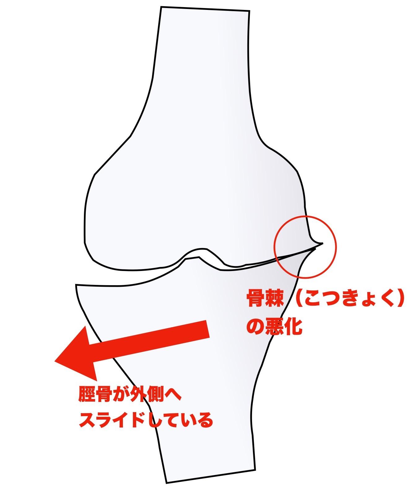 変形性膝関節症のステージ3