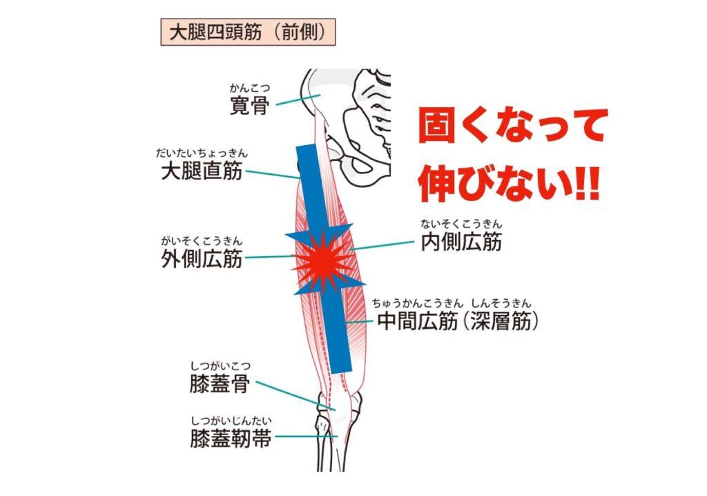 太ももの筋肉表側