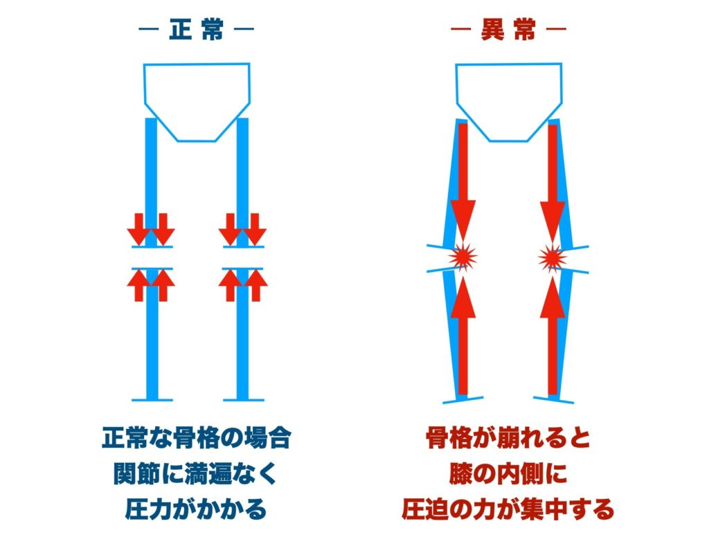 膝関節内側痛の原理