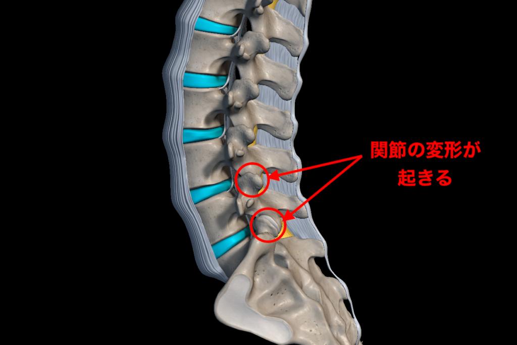 椎間関節の変形